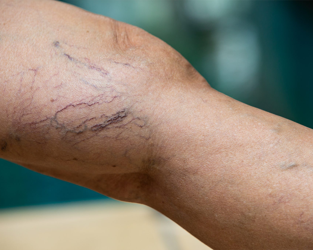 Spider Veins: Can They Go Away on Their Own - BASS Vein Center