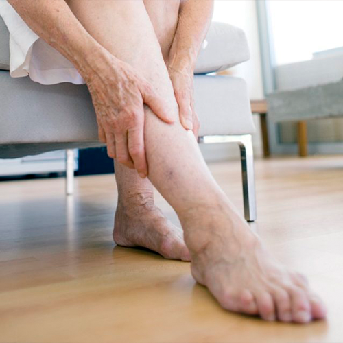Varicose Veins: How to Do a Self-Check at Home