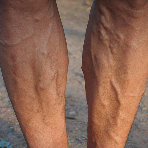 Varicose Veins: What are They and Should I Be Concerned?