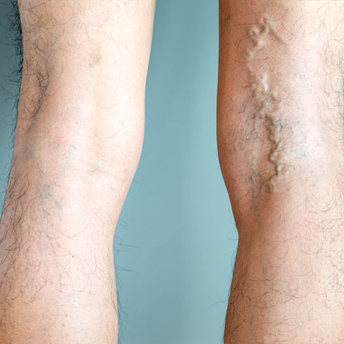 What are varicose veins?