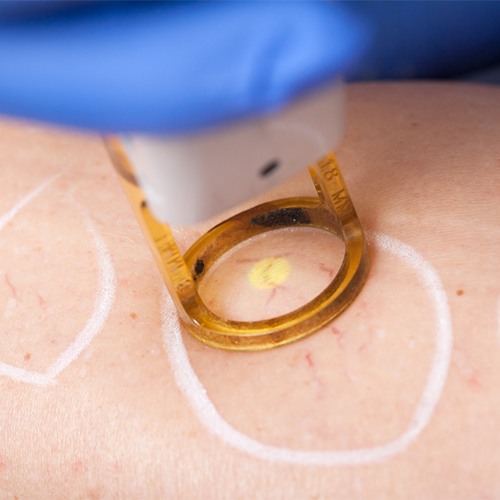 How Effective Is Laser Vein Treatment?