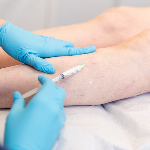 Sclerotherapy: Side Effects and Recovery