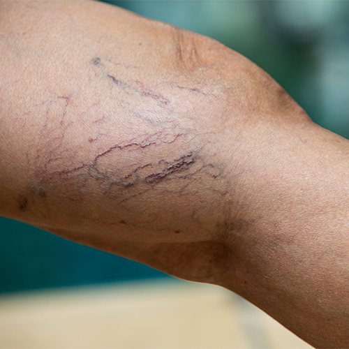 Should I Be Concerned About My Spider Veins?