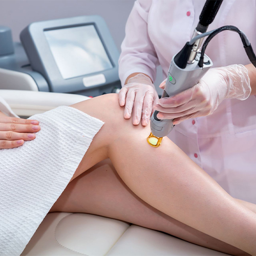 Walnut Creek Residents: 5 Things to Consider When Choosing a Vein Doctor