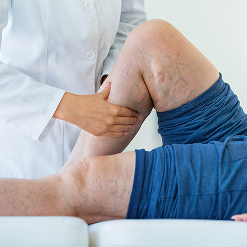The 3 Main Causes of Varicose Veins