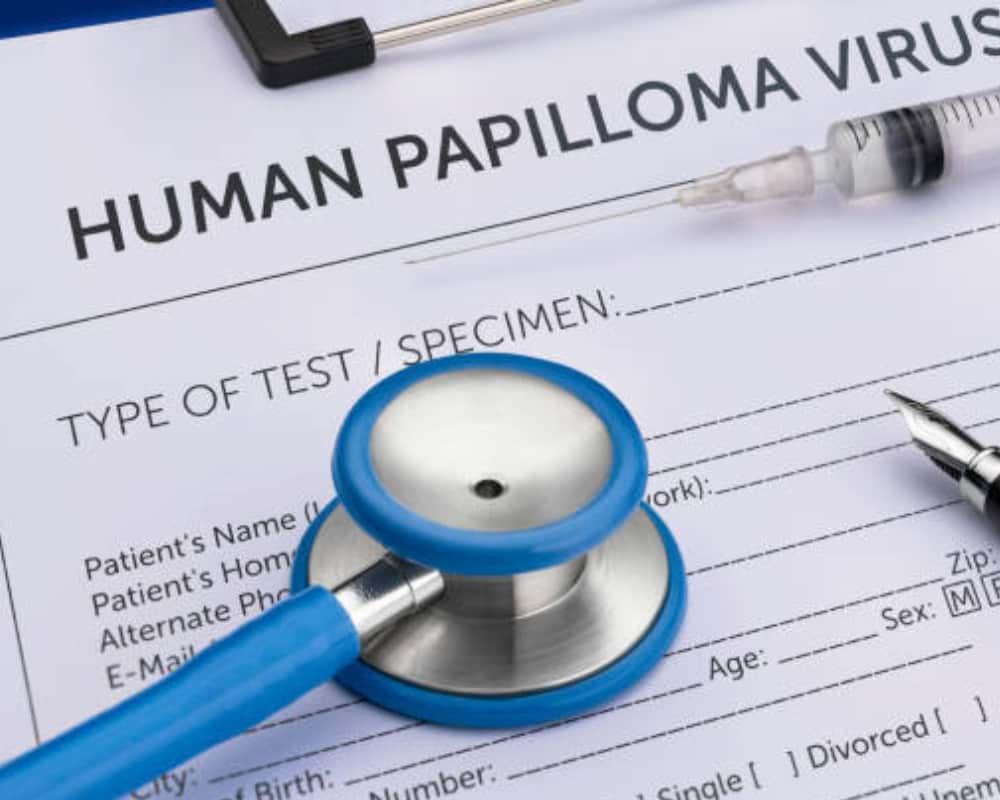 human papillomavirus infection e