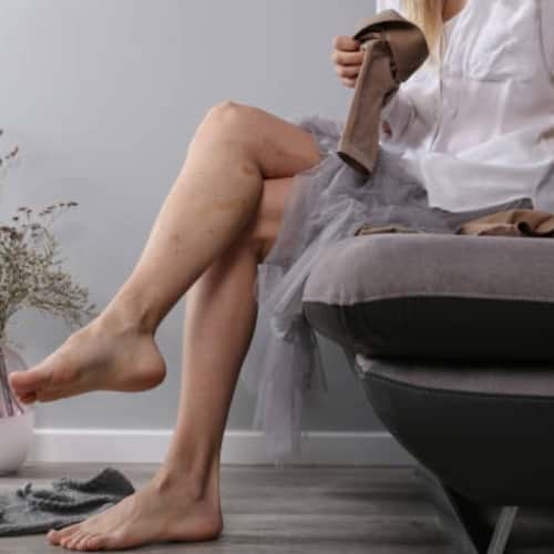 East Bay Residents: Health Benefits of Removing Varicose Veins