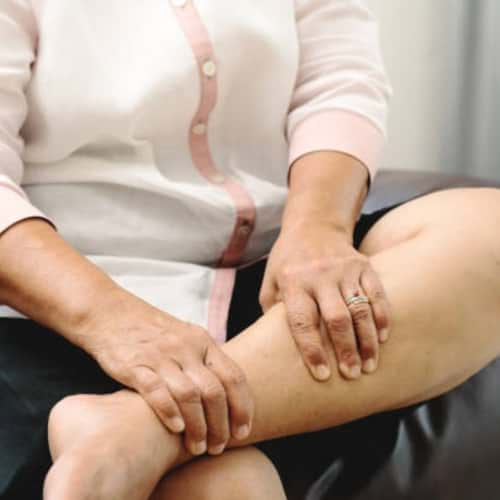 Varicose Veins: A Common Side Effect of Obesity