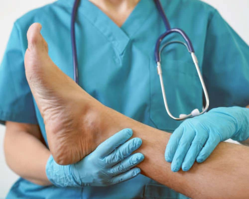Brentwood Residents: Noninvasive Treatments for Spider and Varicose Veins