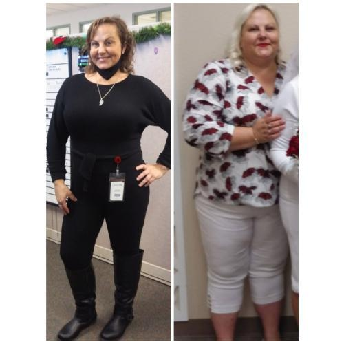Gastric Sleeve Surgery Helps Patient Lose 120 Pounds and Kick Diabetes