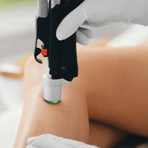 Varicose and Spider Veins: How Laser Treatment Works
