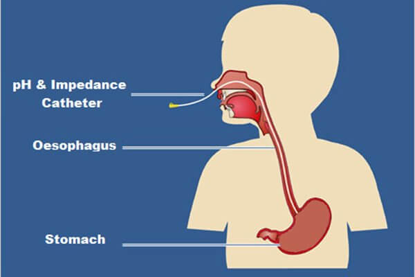 24 Hour Esophageal pH Monitoring