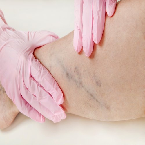 Blood Clots in the Legs: Do They Represent a Danger to Your Health?