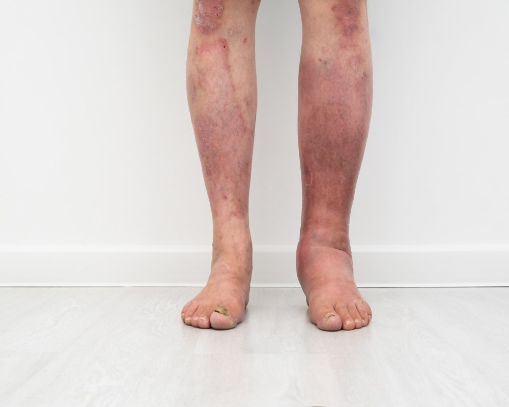 Skin Rash from Varicose Veins: How to Treat and Reduce Itchiness