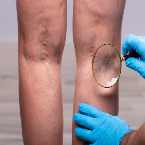 Varicose Veins: The Main Cause Behind Having Restless Legs