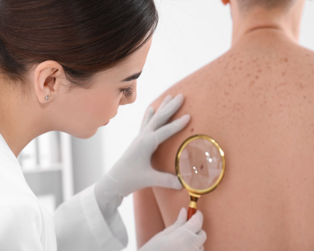 Skin Cancer: Spotting Early Warning Signs and Symptoms
