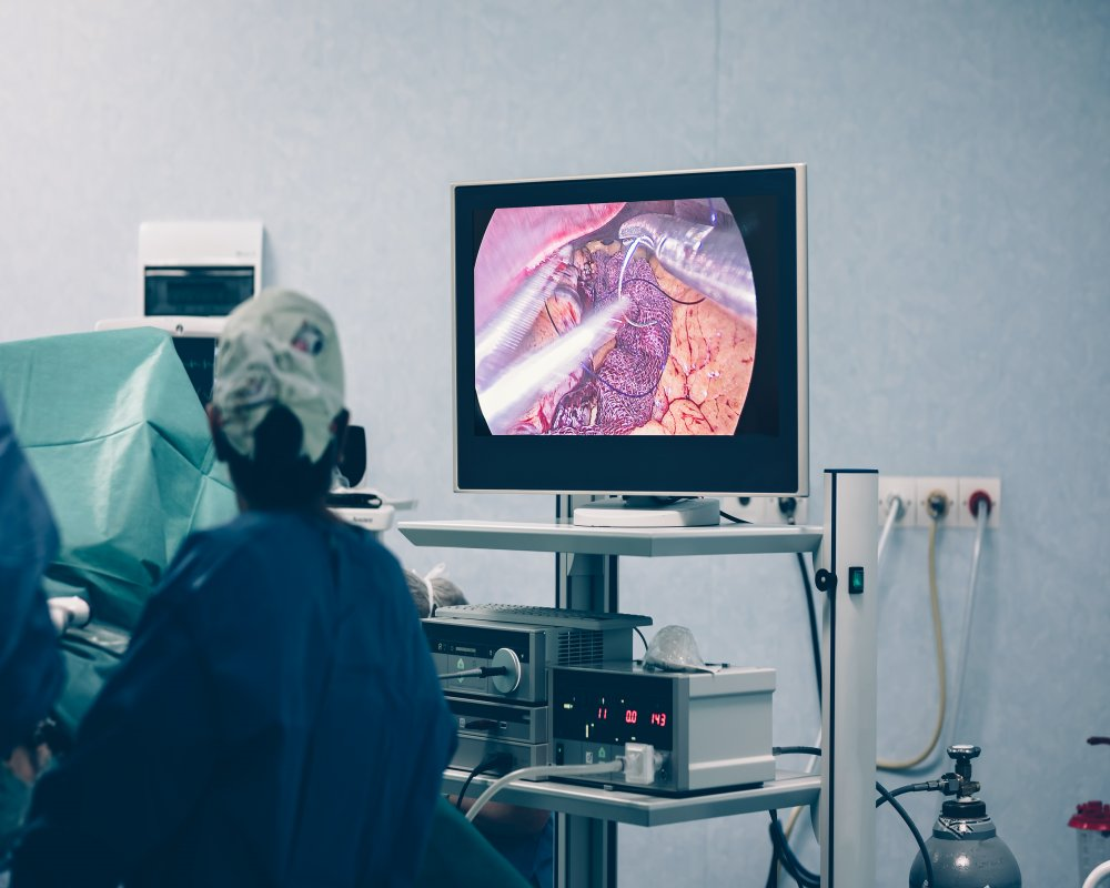 Gastric Sleeve Surgery: What Are the Risks and Side Effects?