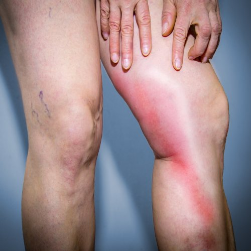 Chronic Venous Insufficiency: How to Treat Swelling Legs