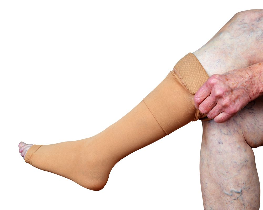 Beginners Guide for Using Compression Stockings to Treat Varicose Veins