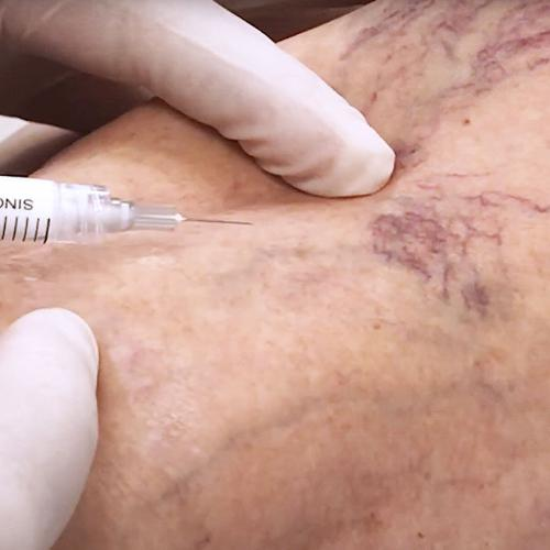 Walnut Creek Residents: How Long Can Sclerotherapy Results Last?