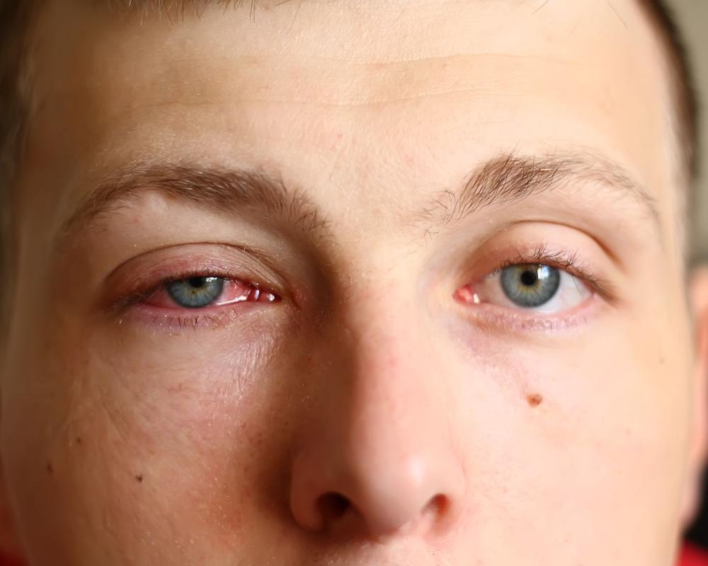 3 Things You Should Avoid Doing When Having Conjunctivitis