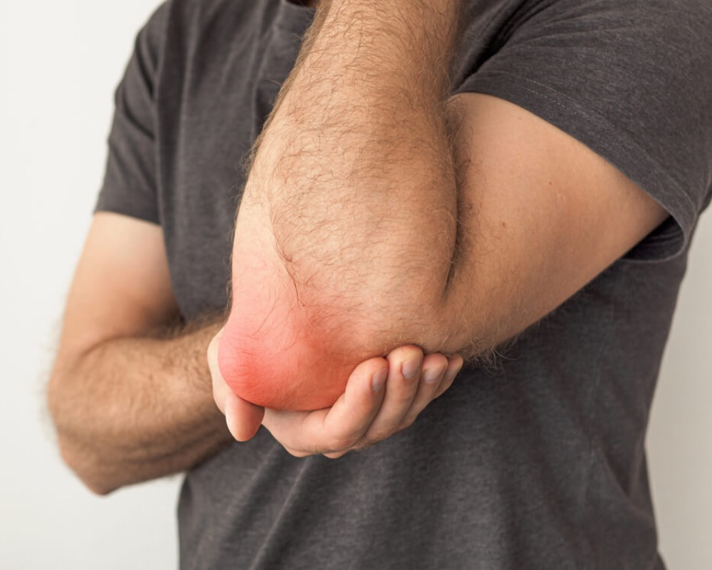 Bursitis: The Cause Behind Inflammation In Knees, Ankles, and More