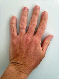 Hand shapes square fingers