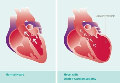 Graphic illustration of different parts of a heart