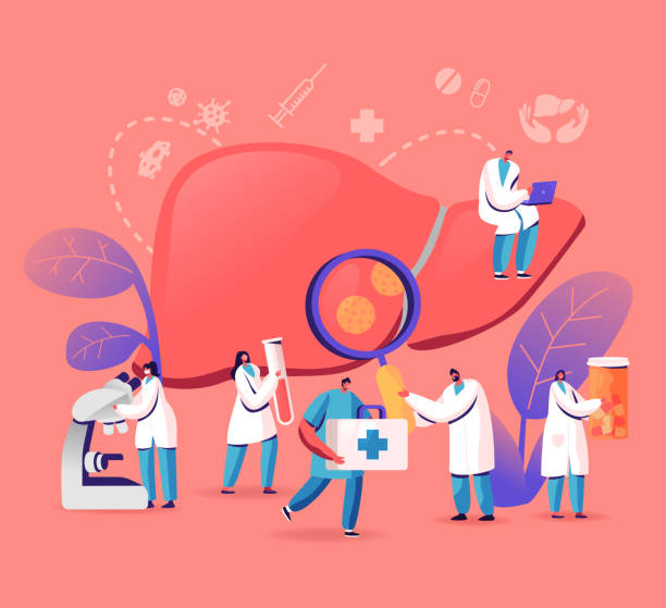 Treatment cartoon vector illustration of tiny doctors taking care of diseased liver
