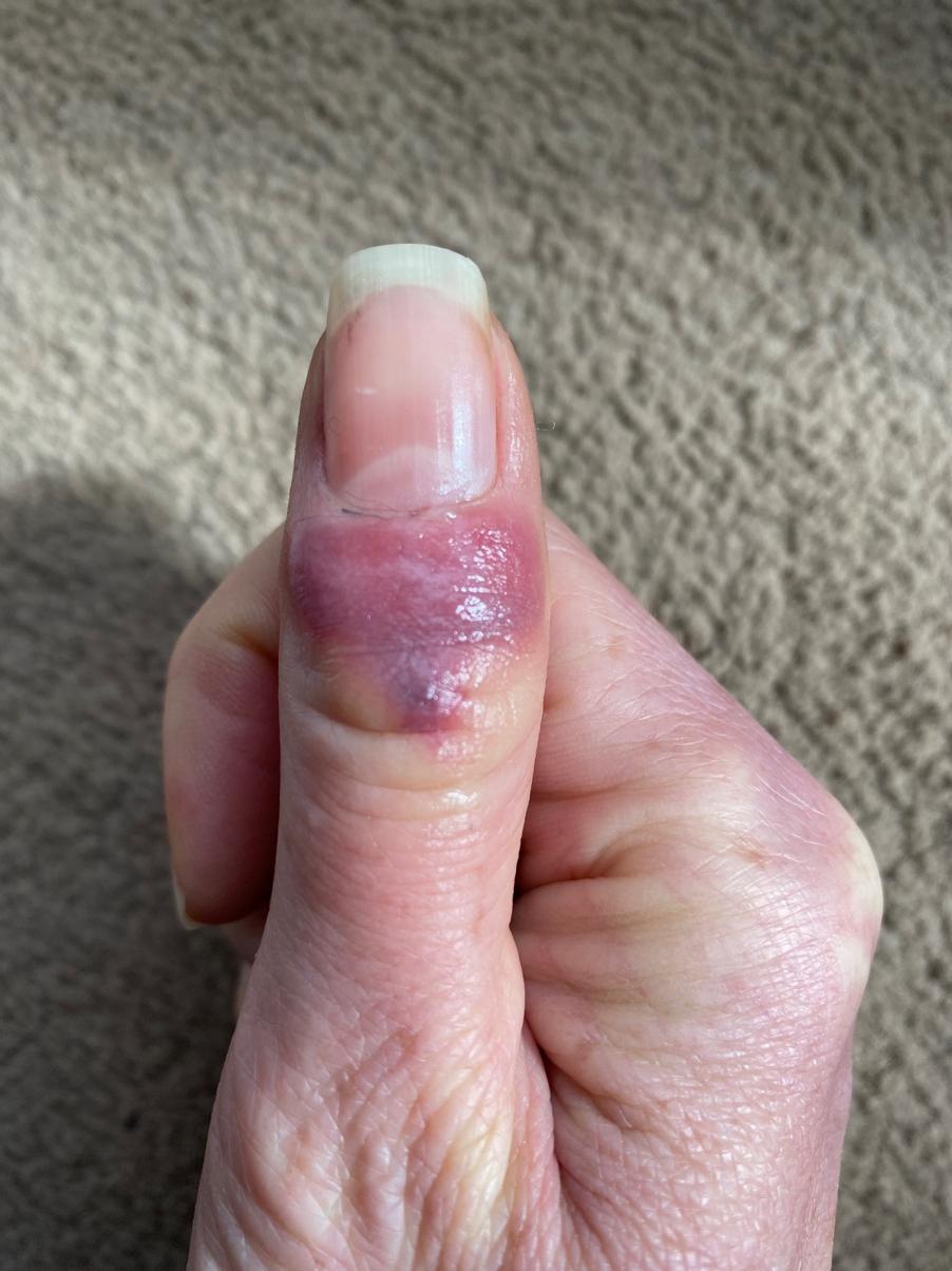 Is my skin rash a COVID-19 symptom?