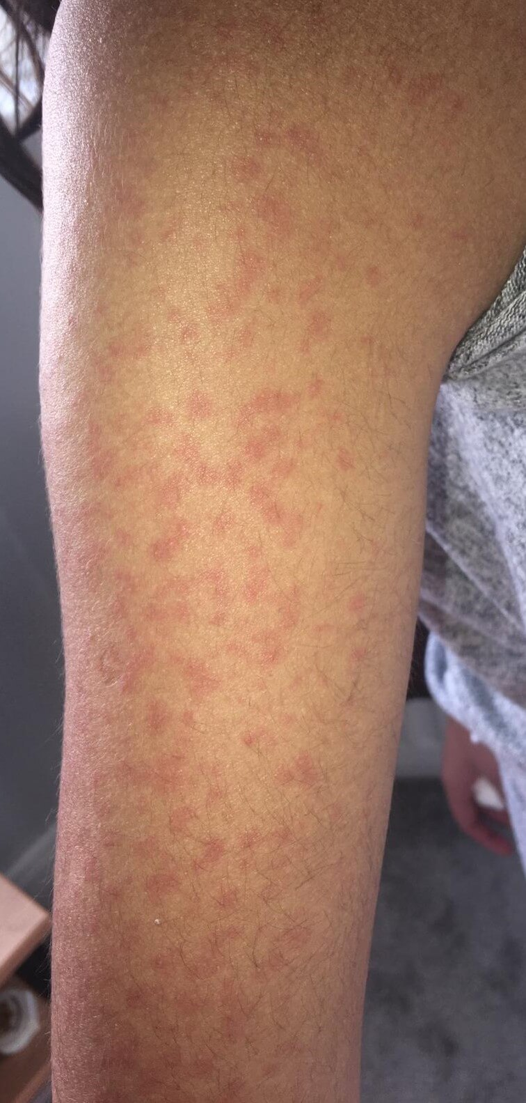 Skin Rash Should Be Considered As A Fourth Key Sign Of Covid 19