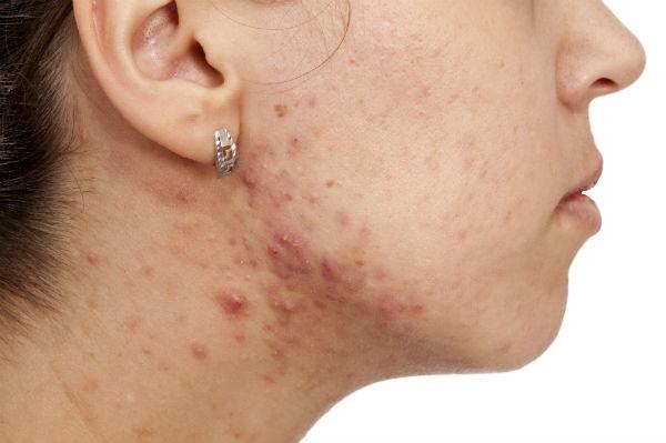 Volwassenen acne