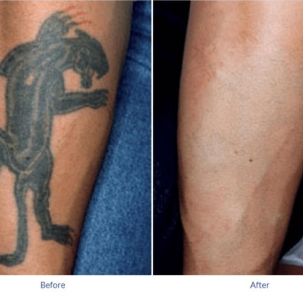 Tatto removal