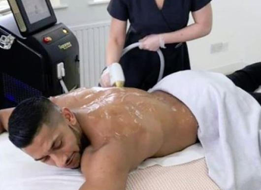 Laser hair removal for back hair