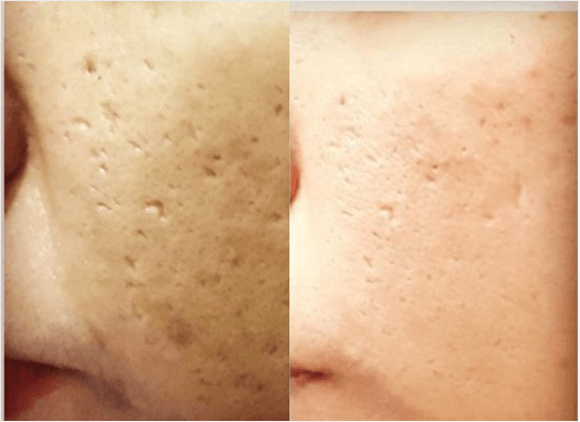 enlarged pores treatment chemical peel