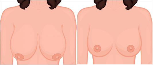 breast reduction UK
