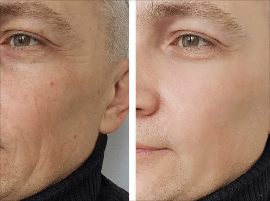 skin tightening treatment UK