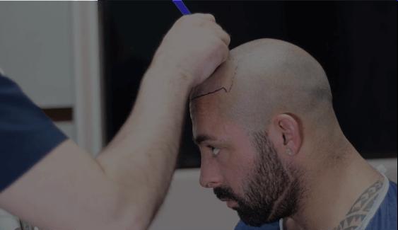 FUE procedure