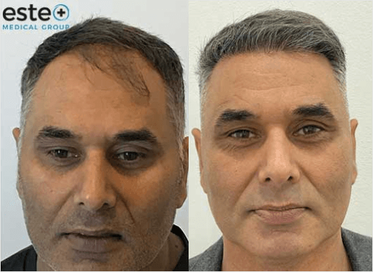 hair loss for men before and after