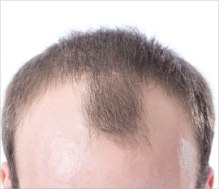 receding hairline treatment UK