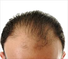 Thinning hair treatments