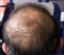 Male hair loss treatment