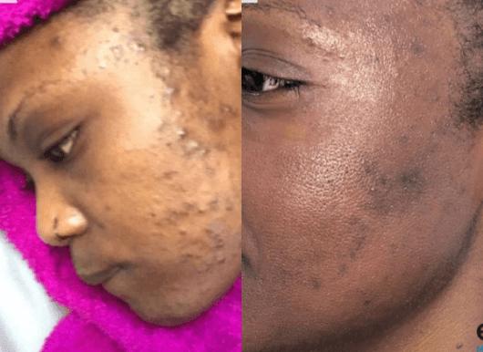 acne treatment UK