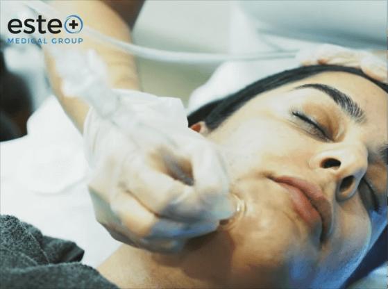 HydraFacial treatment video Birmingham