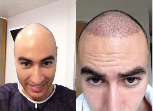FUE hair transplant surgery before and after