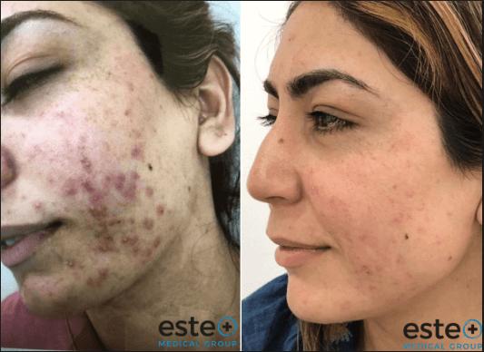 Acne scar treatment Nottingham