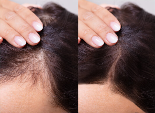 How Do I Know If I'm Losing My Hair?