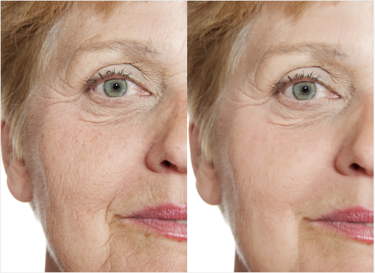 chemical peel before and after