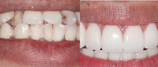 cosmetic dentrisy