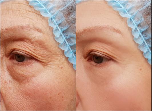 eye bags removal